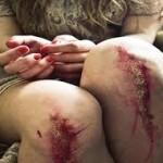 Seni Feriti [contro la violenza alle donne]